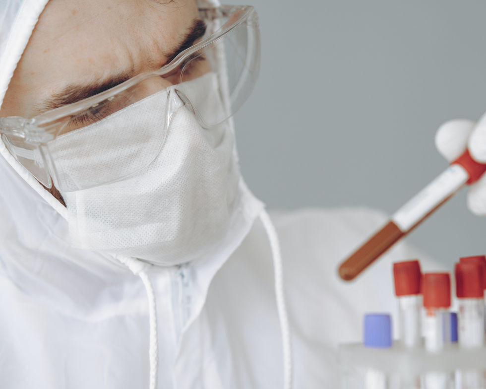 Test sierologici per anticorpi Covid-19