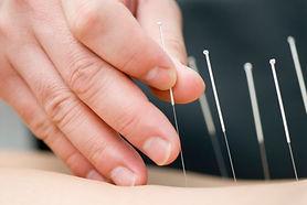 Acupuncture grand plan.jpg