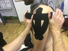 Kineziotaping nabízí vhodný terapeutický nástroj fyzioterapeutům či masérům, pokud je narušena rovnováha správně fungujících svalů, kloubů nebo vazů. Velkou předností kineziotapingu je, že terapeut může svého klienta významně podpořit v jeho další léčbě po odchodu z ordinace.