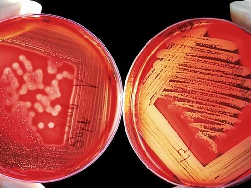 Hypochlorous acid: harnessing nature's germ killer