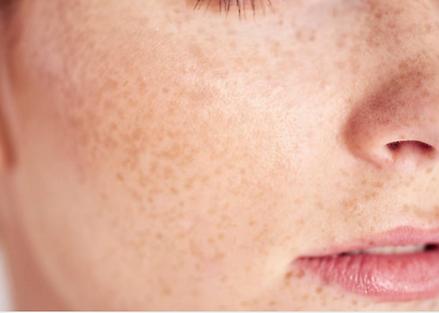 Skin Pigmentation Adelaide.png