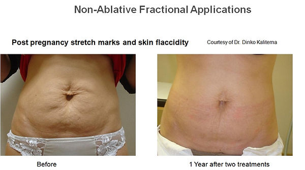 stretch marks post pregnancy #2.jpg