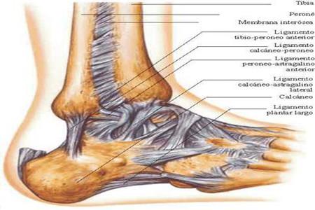 Dolor producido por lesiones de tobillo
