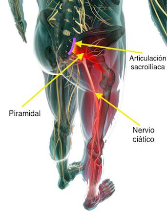 El síndrome del piramidal o piriforme y su relación con la ciática ...