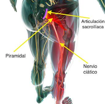 El síndrome del piramidal o piriforme y su relación con la ciática