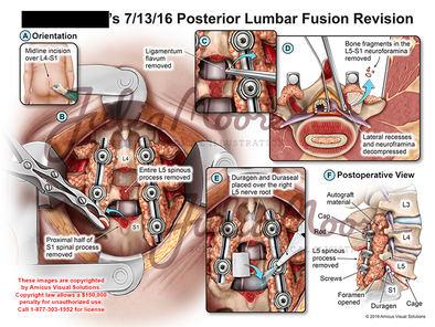 Posterior Lumbar Fusion Revision