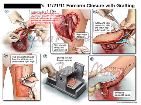 Forearm Closure with Grafting
