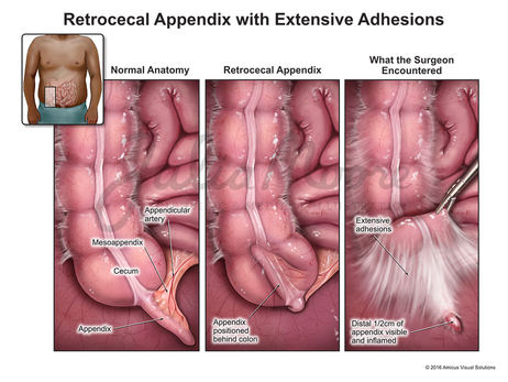 Retrocecal Appendix with Extensive Adhesions