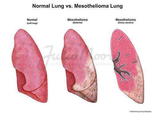 Normal vs. Mesothelioma