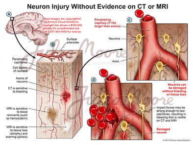 Neuron Injury Without Evidence on CT or MRI
