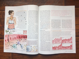 The Scientist: Immune Irritation in the Gut