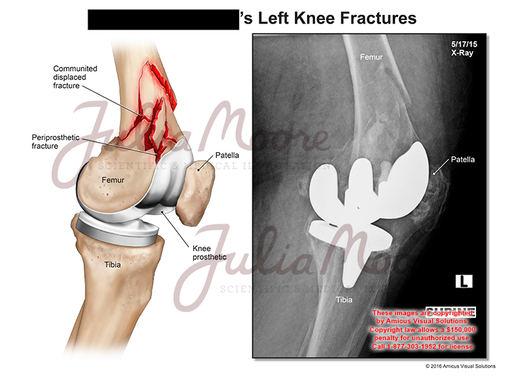 Left Knee Fractures
