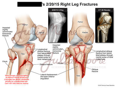 Right Leg Fractures