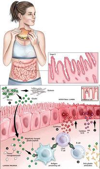 Immune Irritation in the Gut