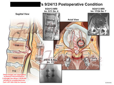 Postoperative Condition