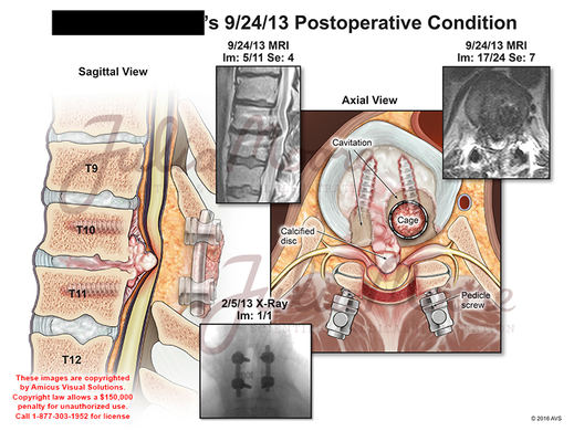 Postoperative Condition