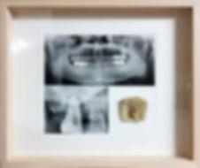 Oh, Sang-ghil, a molar, 2016.jpg