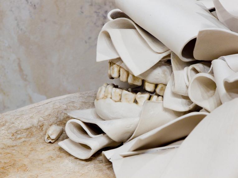 All that is left undone teeth.jpg