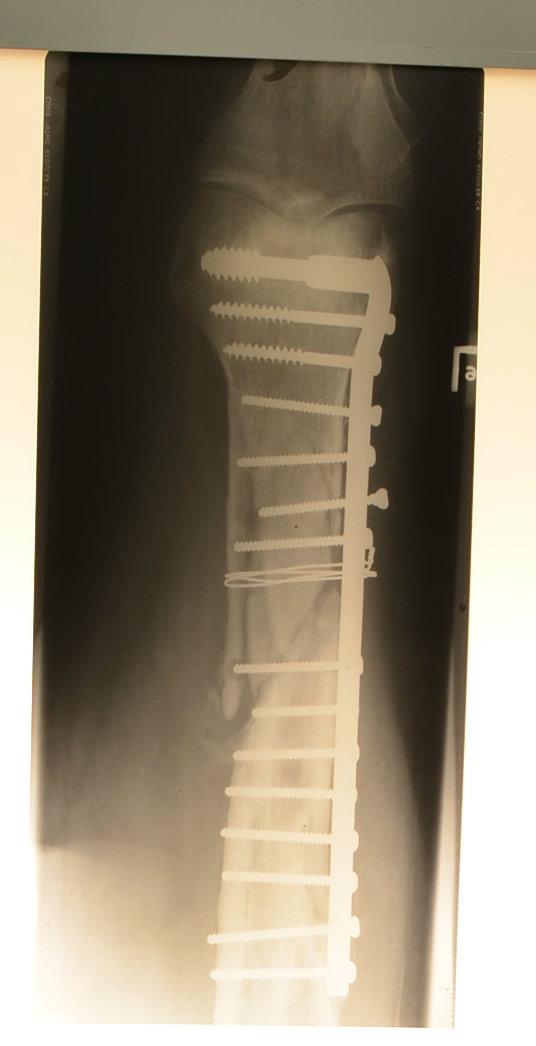 X-ray - lower leg