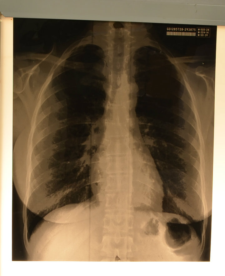 X-ray - chest