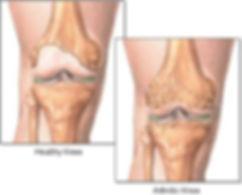 knee-cover.jpg