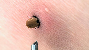 Lyme tick.jpg