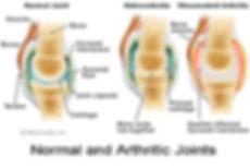 arthritic bones.jpg