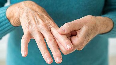 arthritic hands.jpg