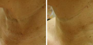 Photo Courtsey of Dr. Bruce Katz, Juva Skin and Laser Center, NYC