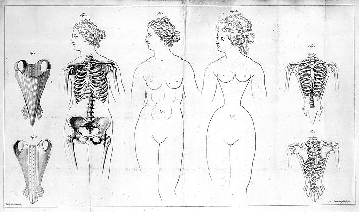 Distortions_of_the_female_rib-cage_cause