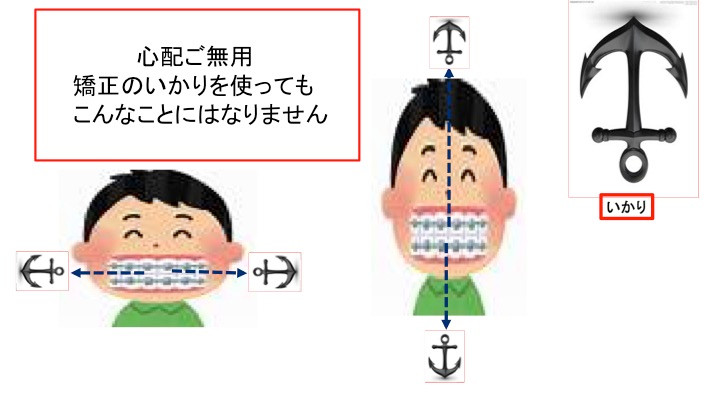 歯科矯正用アンカースクリューについて