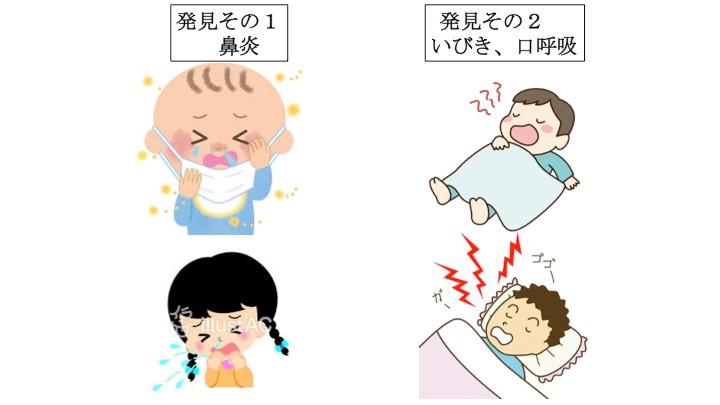 子供の発育に有害な呼吸障害、発見方法はズバリこれ