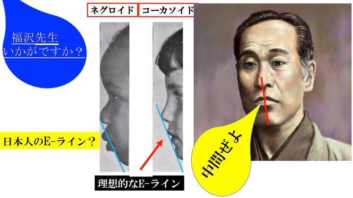 横顔の美的評価(E-ライン)はなぜ日本人に不似合いか?
