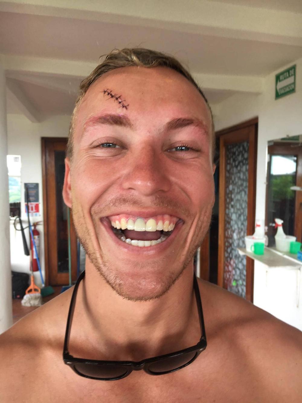 My Slip into Insanity   Naked Tiger Hostel   Bing Fraser