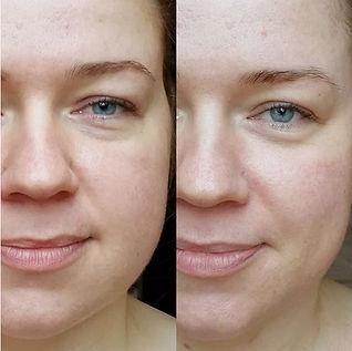Lifting, Gesichtlifting, Verjüngung, MANUK Permanent Make-up, Thun, Kosmetik, kosmetische Behandlung, Gesichtsbehandlung, Vitality, Gesundheit, Schönheit, Beauty, Natürlich, natürliche Kosmetik, Zero Waste, O-Hautpflege, Hautpflege, Detox