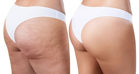 Female buttocks before and after treatme