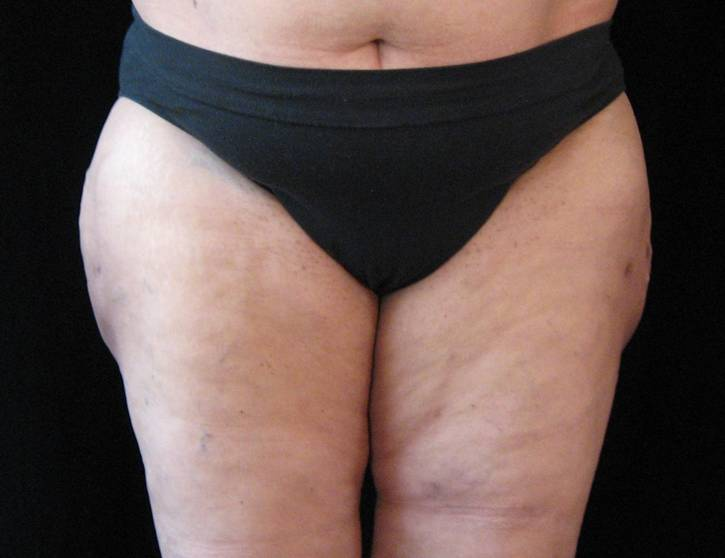 LIPO AFTER.jpg