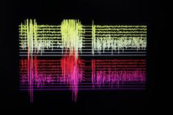 myoelectric signal