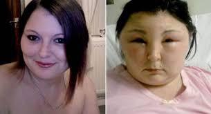 De reden om nooit meer je haar te kleuren met chemische verf of zo genaamd Bio-verf zonder ammonia: