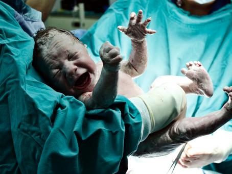 Nace bebé sin pene, algo asombroso para los médicos
