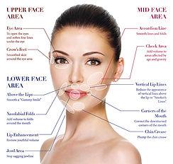 dermal_fillers-treatment-areas.jpg