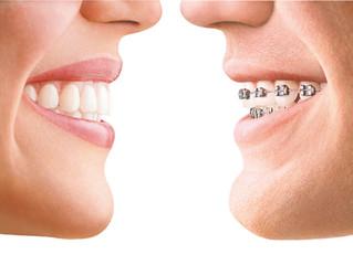 Ортодонтическое лечение во взрослом возрасте!