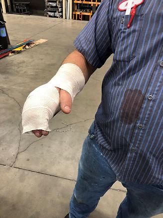 crushed hand.jpg