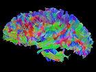 brain image color.jpg