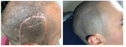 Micropigmentacion Cicatrices Mexico