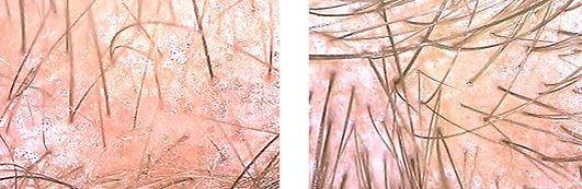 tratamiento alopecia mexico