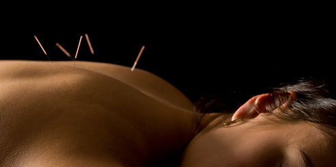 Acupuncture%20Treatment_edited.jpg