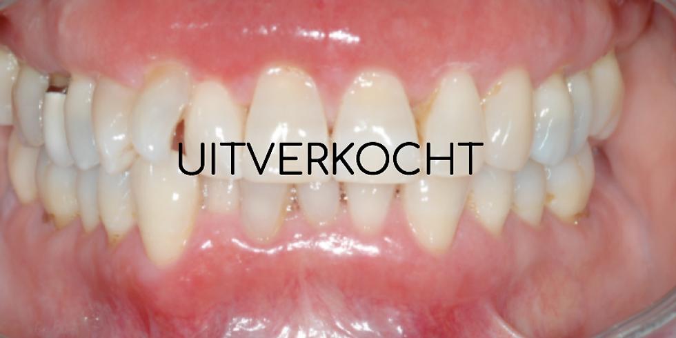 Mond - en Kaakziekten voor mondhygiënisten 2019- Uitverkocht