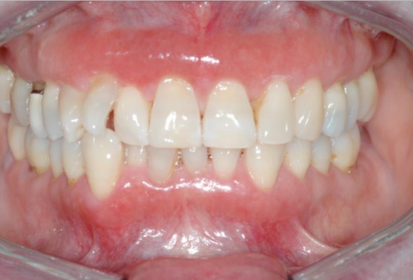 Casus: rode gingiva in onder- en bovenfront