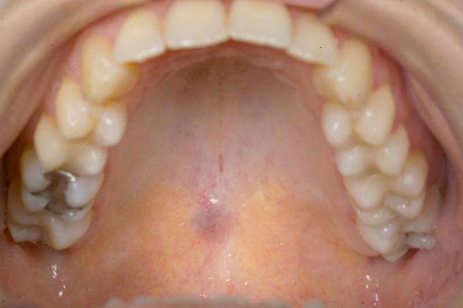 Casus: blauw doorschemerende pijnloze zwelling  palatum
